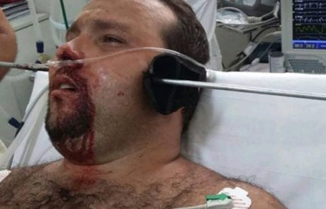 שרד בנס: האיש הזה חי אחרי שצלצל נורה לראשו (MAKO)